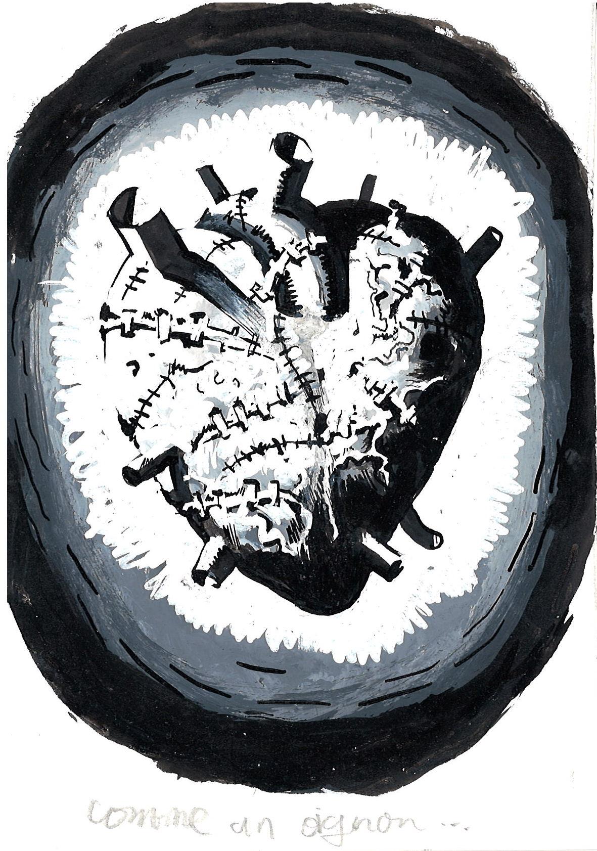 coeurs, musée de la vie romantique, romantisme, art contemporain, médecine, symbole, amour, gothique, kitsch